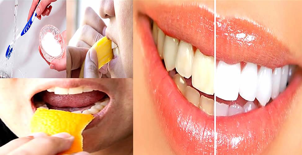 Receita Caseira para Clarear os Dentes