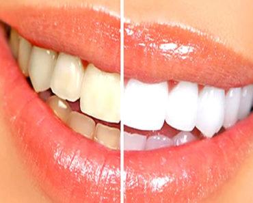 receita-caseira-para-clarear-os-dentes