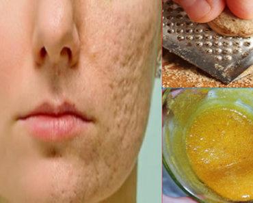 Como remover manchas do rosto