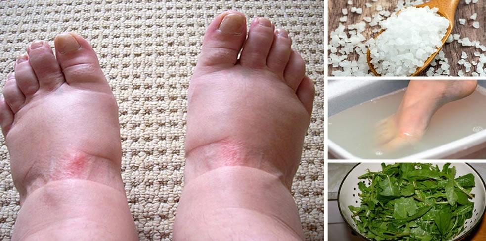 Inchaço nos pés