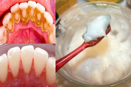 Receita Caseira Para Tirar Tartaro Dos Dentes Em 3 Minutos