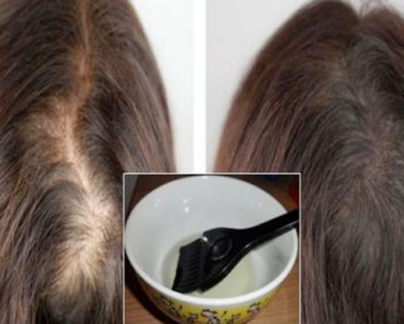 oleo de mamona para cabelo