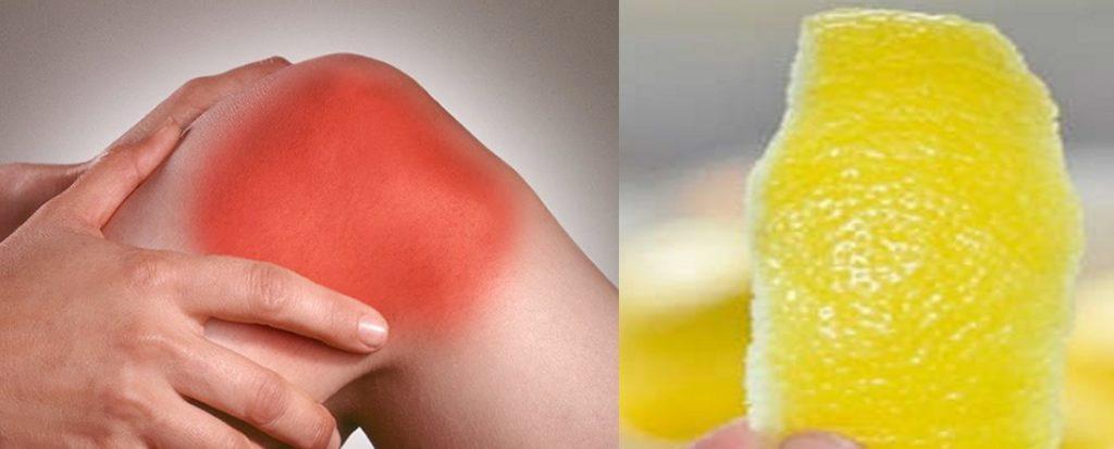 Remédio caseiro para dor no joelho