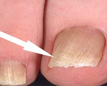 remedios caseiros para micose nas unhas