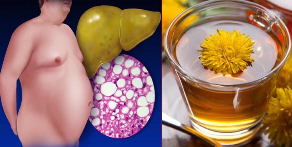 Tratamento Natural para Gordura no Fígado