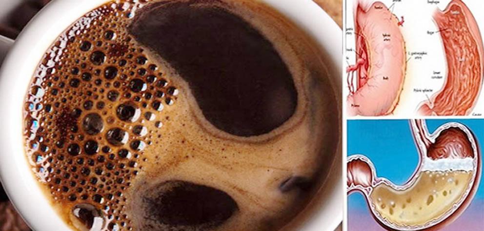 café em jejum faz mal
