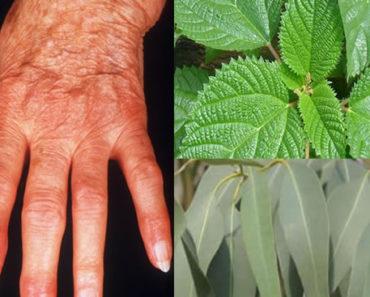 remédio caseiro para artrite