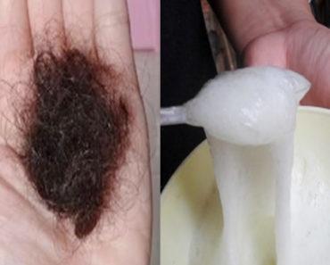 tratamento para queda de cabelo