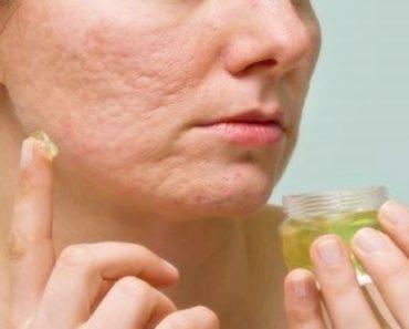 Benefícios do aloe vera para pele