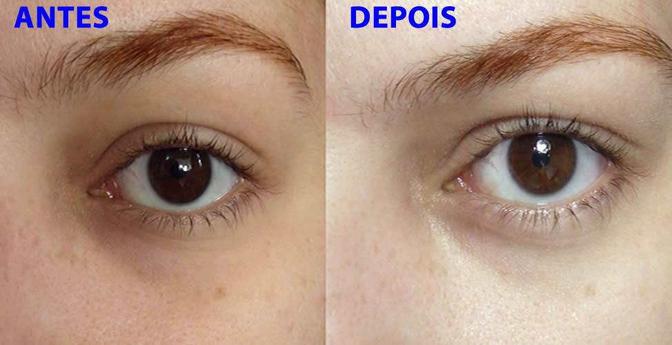 Como eliminar as olheiras naturalmente