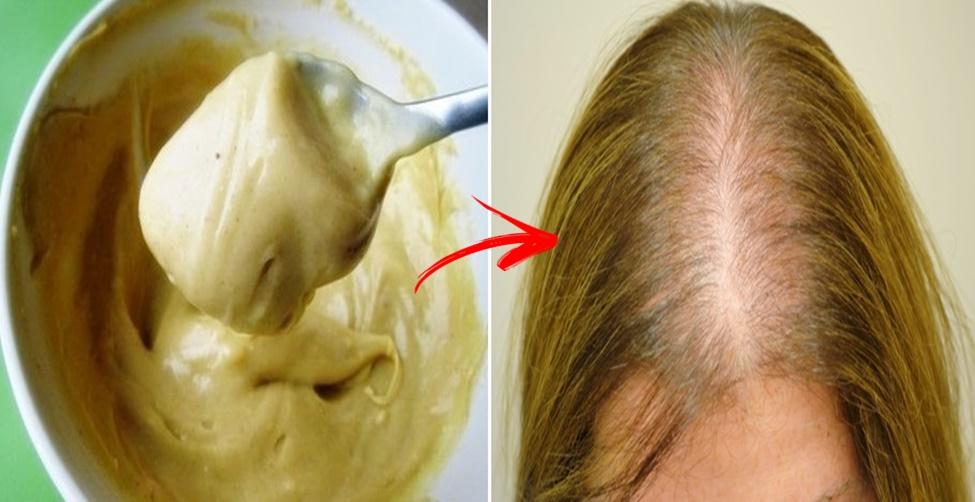 o que é bom para queda de cabelo