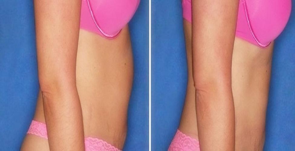 como reduzir o estômago sem cirurgia