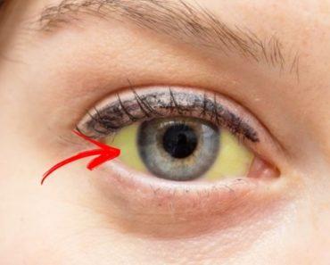 sinais dos olhos