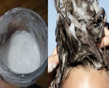 xampu de bicarbonato de sódio