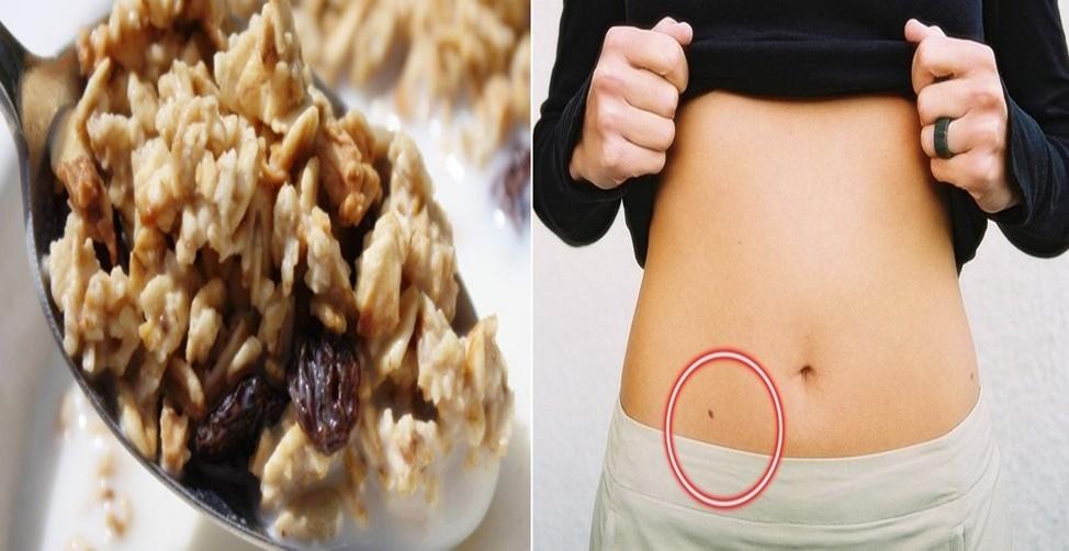 Tratamento natural para apendicite