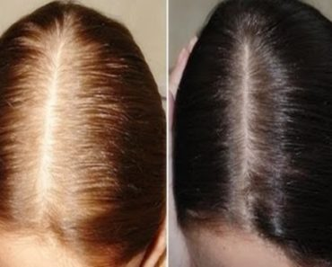Receita caseira para o cabelo parar de cair