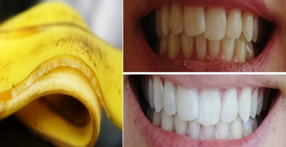 Clareamento Dental Caseiro E Totalmente Natural Simples E Economico