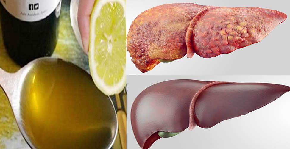 como desintoxicar o fígado