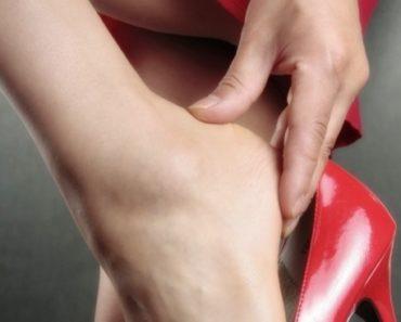 tratamento para esporão calcâneo