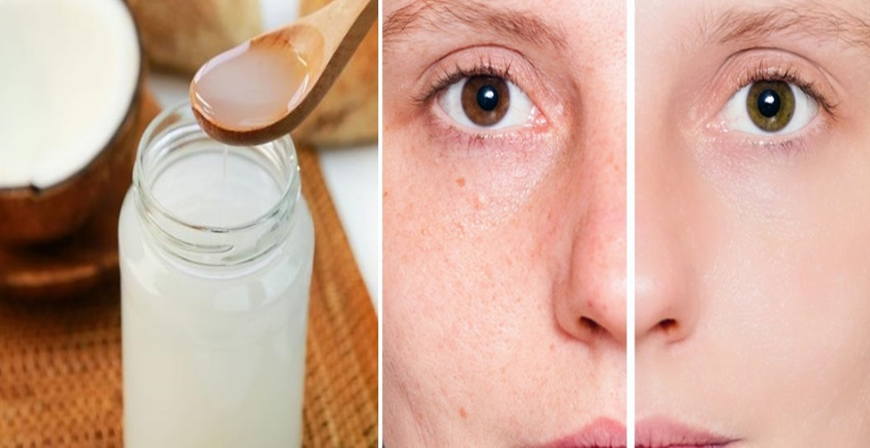 Como usar o óleo de coco
