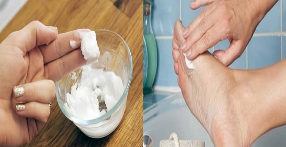 Remédios naturais para curar o pé de atleta