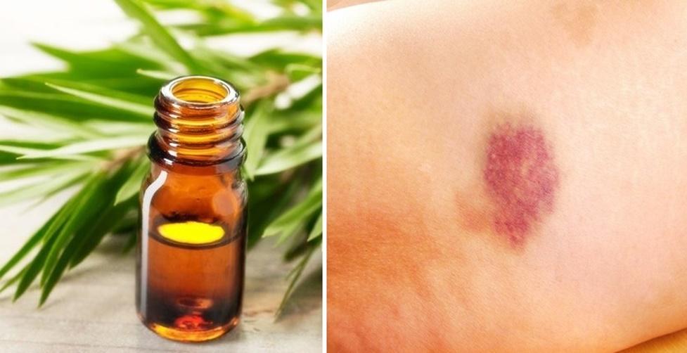 benefícios do óleo de melaleuca