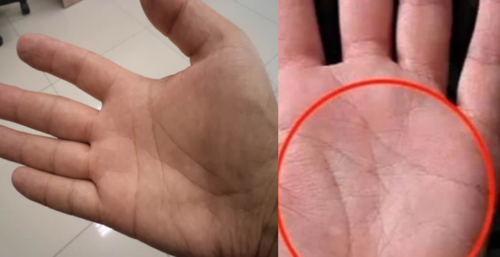 letra M na palma da mão