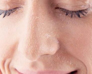 soluções domesticas para cuidar da pele ressecada