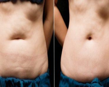 creme caseiro para perder gordura sem exercícios