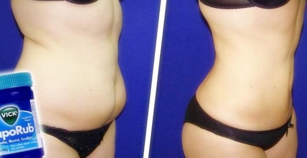 eliminar a gordura abdominal localizada com Vick