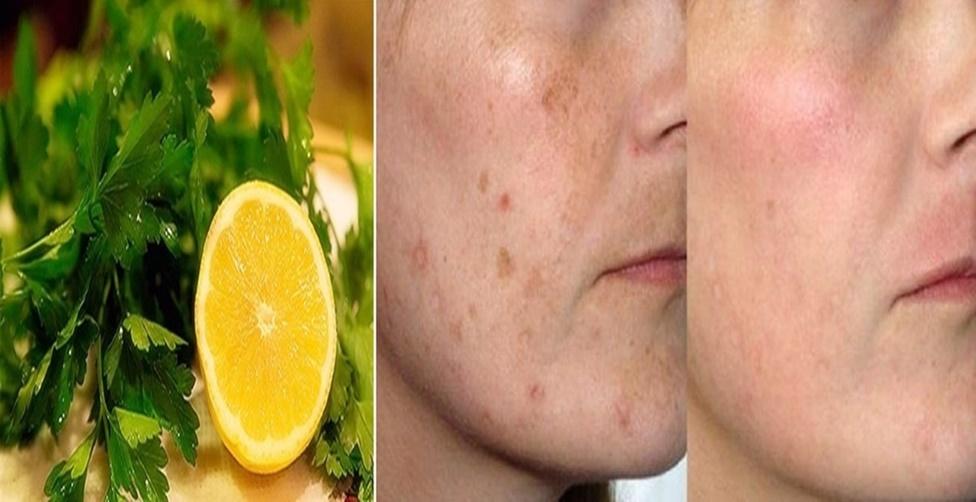 solução caseira para pele