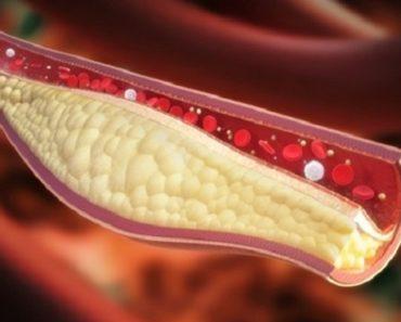 formas de desentupir artérias imediatamente