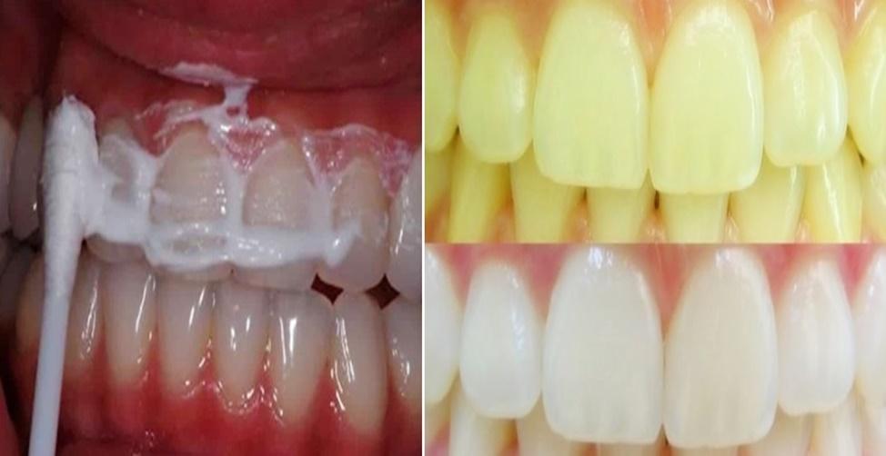 2 Receitas Sensacionais Para Clarear Os Dentes Em Casa