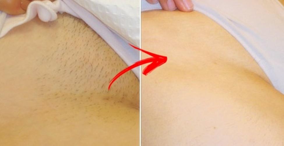 depilar a região intima sem usar cera