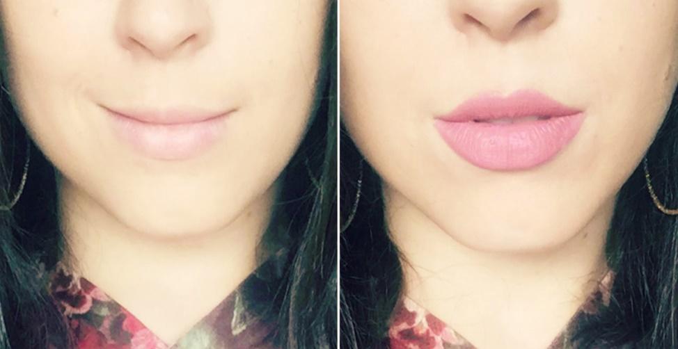 receitas caseiras para aumentar os lábios