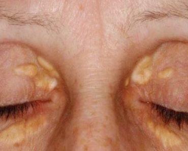 tratamentos naturais contra xantelasma