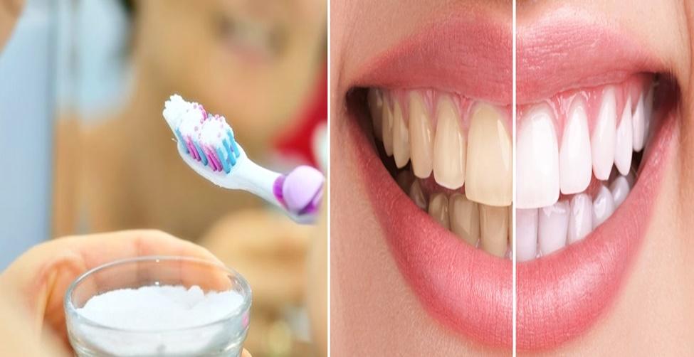 Como branquear os dentes com bicarbonato de sódio