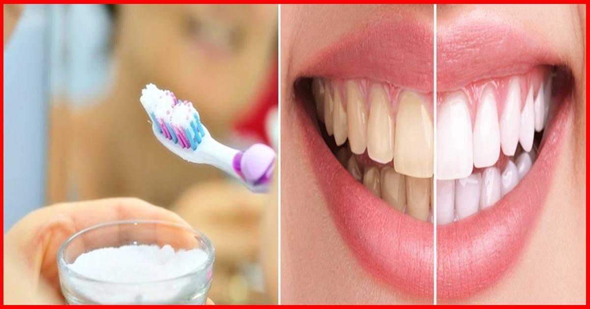 Como Branquear Os Dentes Com Bicarbonato De Sodio Eu Nao Sabia