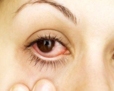 remédios caseiros para curar conjuntivite