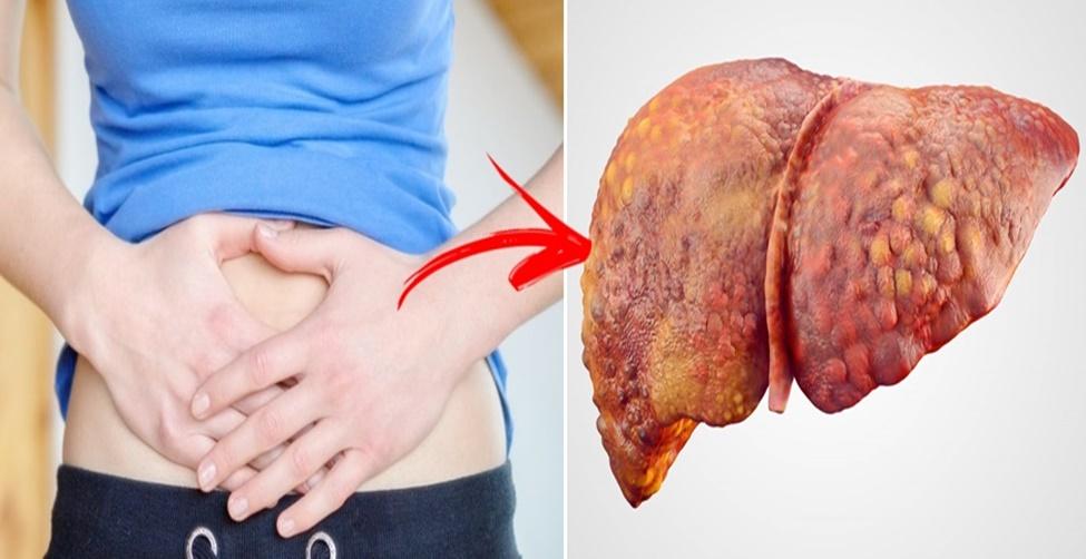 sintomas de mau funcionamento do fígado