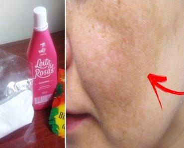 Tratamento para pele com leite de rosas e bicarbonato