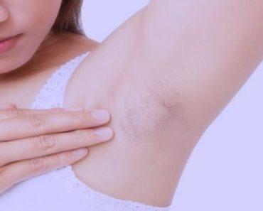 técnica caseira para acabar com os pelos