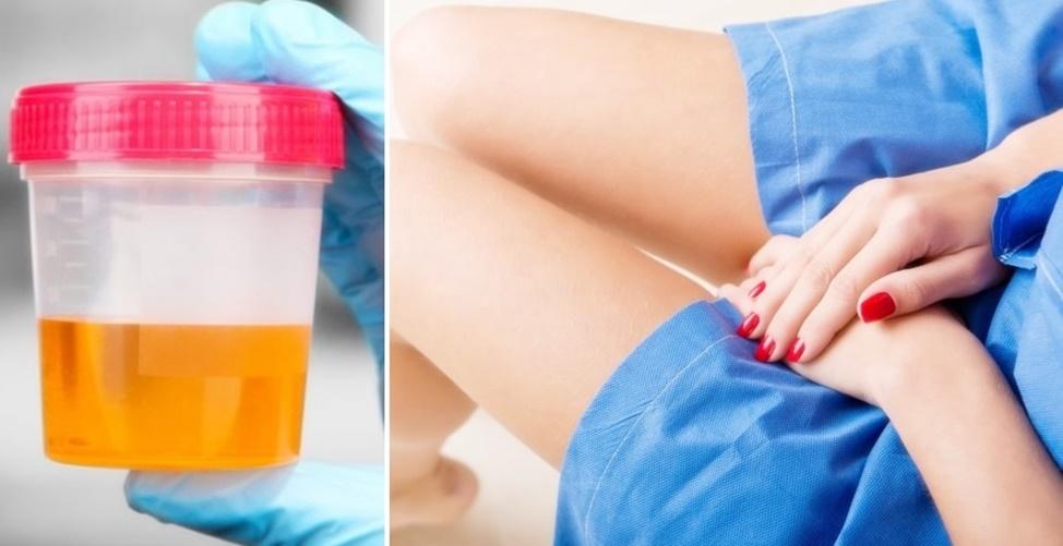 razões que explicam urina fedorenta