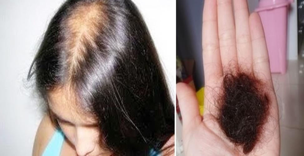 métodos caseiros para impedir a queda de cabelo