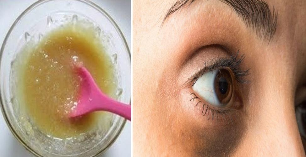 Receita natural para acabar com olheiras