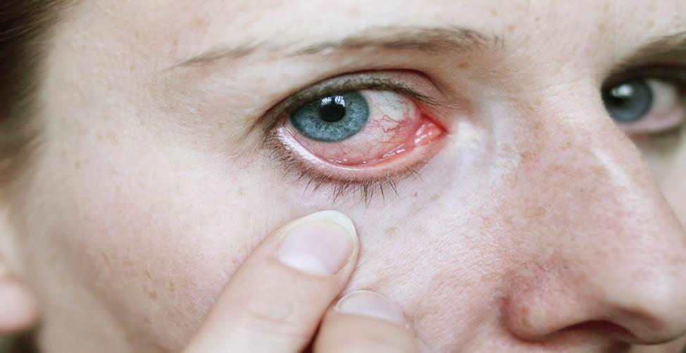 Cuidado com os Olhos