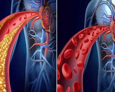 Como-Limpar-as-artérias