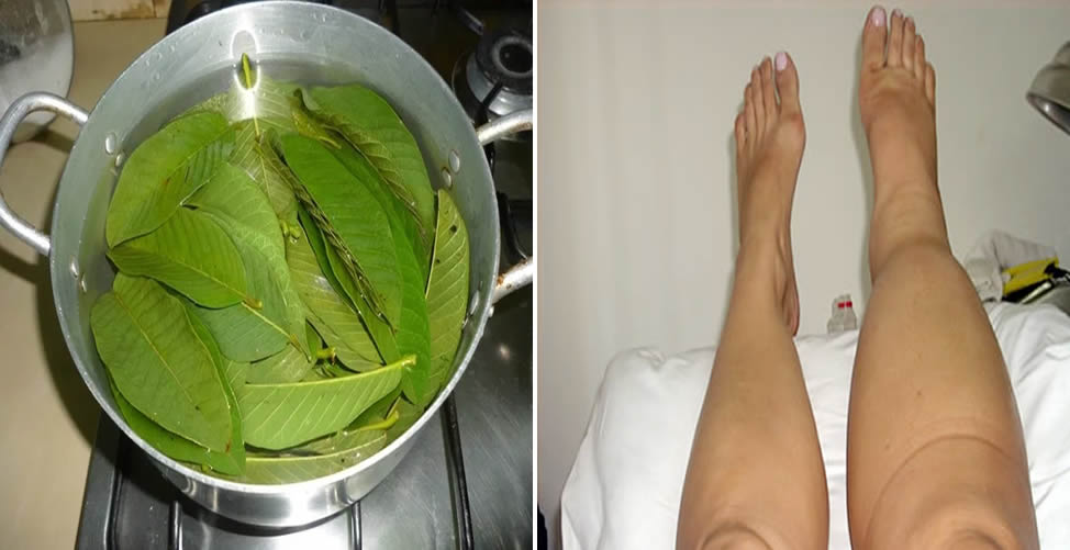 Remédio Caseiro Para Elefantíase-Chá de Goiabeira