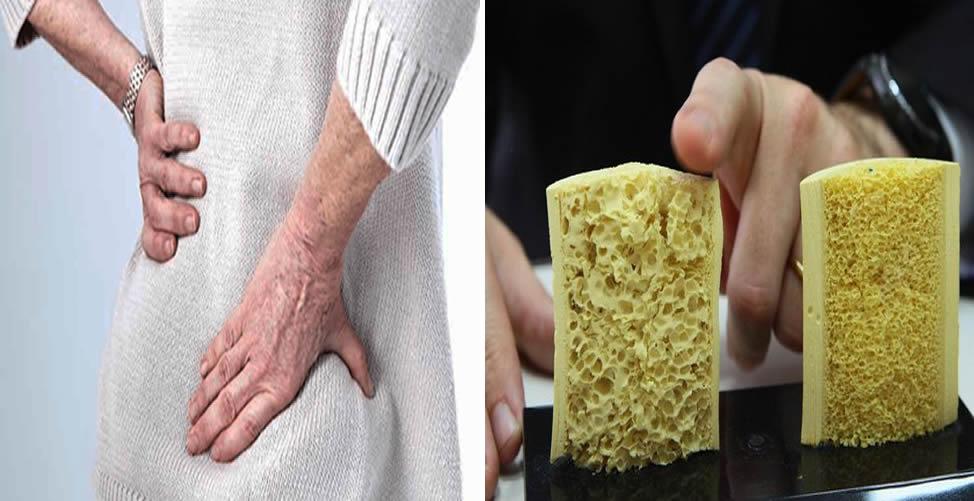 Remedio Caseiro para Osteoporose