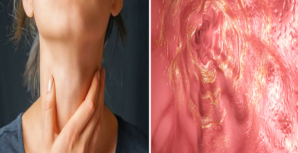 Saiba os Sintomas de Inflamação no Esôfago